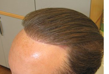 after 3000 hair implant Exoderm