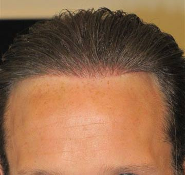 Exoderm artificial hair implant